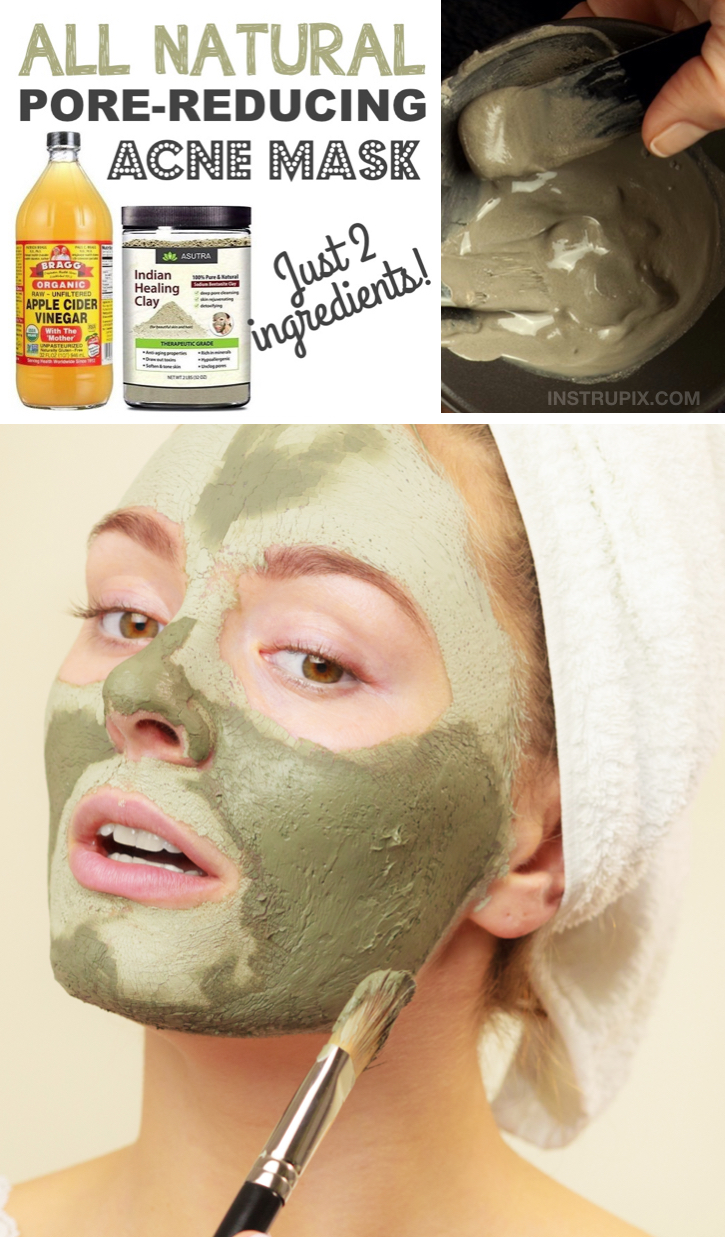 Looking for fast homemade acne remedies? This DIY face mask is made with just 2 natural ingredients! Apple cider vinegar and Indian Healing Clay.