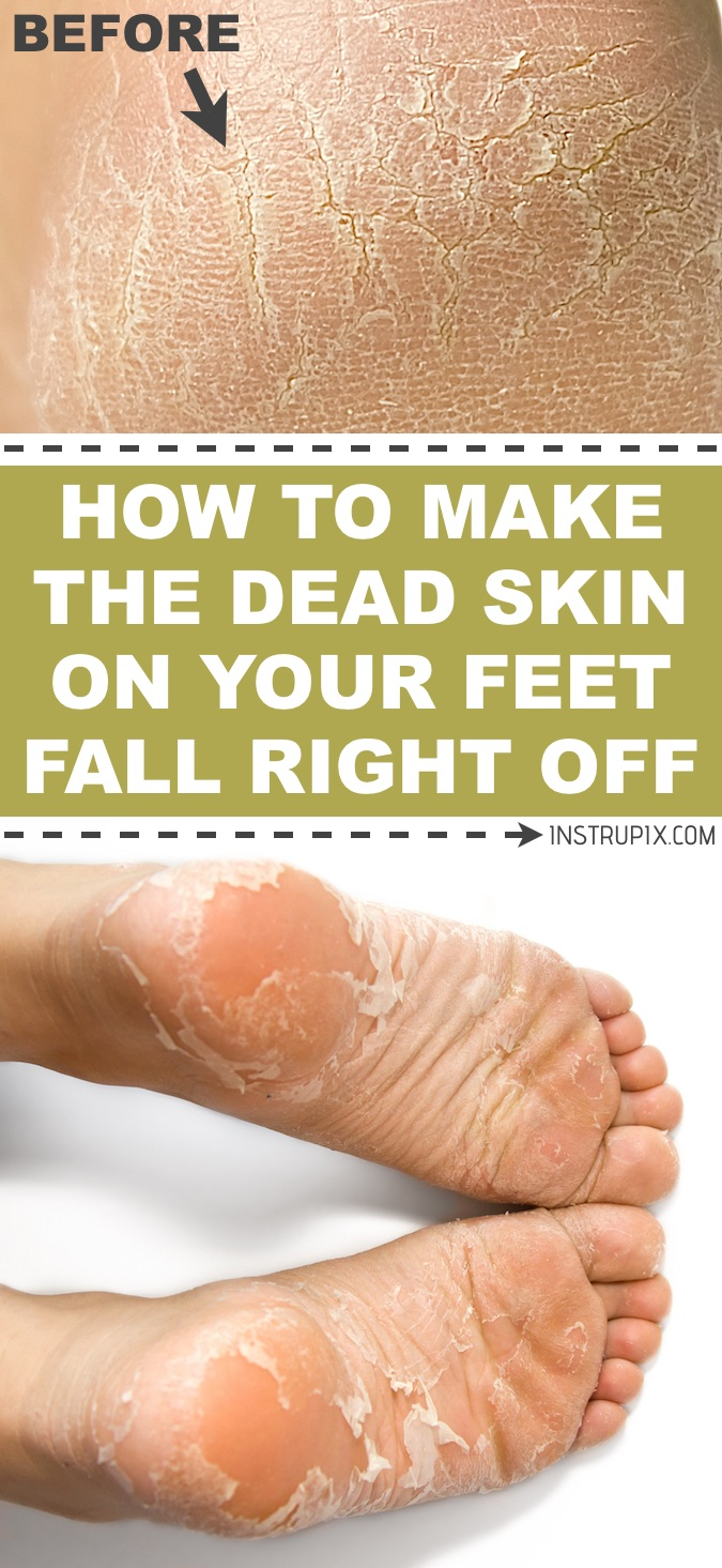 How To Remove Hard Skin From Feet Naturally