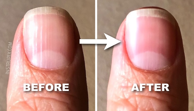 What Are Those Vertical Lines On Your Nails And It Means About Health